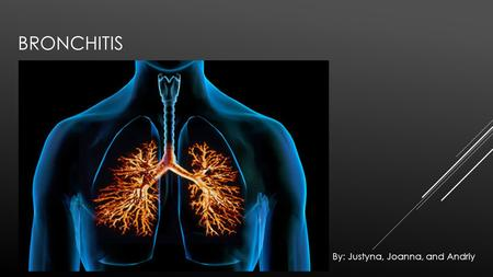 BRONCHITIS By: Justyna, Joanna, and Andriy. WHAT IS BRONCHITIS? Bronchitis is a respiratory disease that causes the mucous membrane lining the bronchial.