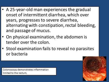 On physical examination, the abdomen is tender over the colon.