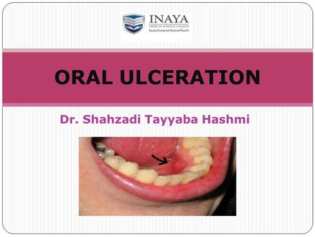 Dr. Shahzadi Tayyaba Hashmi ORAL ULCERATION. Oral mucosa is composed of stratified squamous epithelium, which covers and protects the underlying connective.