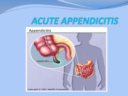 ACUTE APPENDICITIS Appendicitis is defined as an inflammation of the inner lining of the vermiform appendix that spreads to its other parts. This condition.