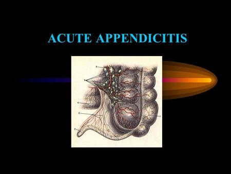 ACUTE APPENDICITIS. Acute appendicitis is an inflammation of a vermiform appendix caused by purulent microflora. Approximately 7 percent of the population.