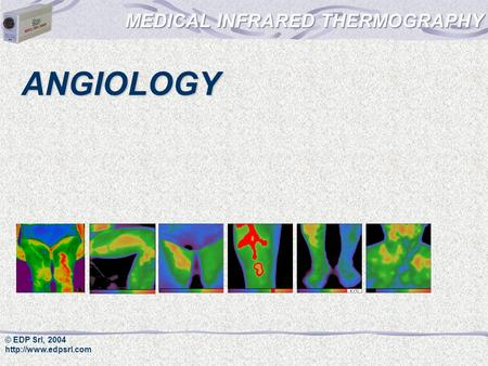 © EDP Srl, 2004  ANGIOLOGY. © EDP Srl, 2004  Angiology Infrared thermography is a very good method in angiology.