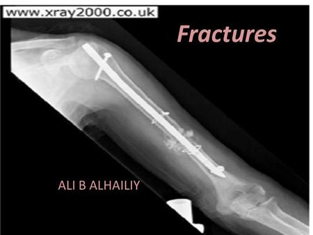 Fractures ALI B ALHAILIY. Definition Fracture :a break in the continuity of a bone A fracture is present when there is loss of continuity in the substance.