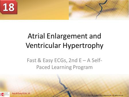 Fast & Easy ECGs, 2E © 2013 The McGraw-Hill Companies, Inc. All rights reserved. Atrial Enlargement and Ventricular Hypertrophy Fast & Easy ECGs, 2nd E.
