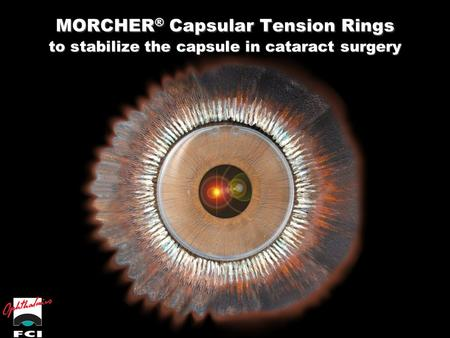 MORCHER® Capsular Tension Rings to stabilize the capsule in cataract surgery.