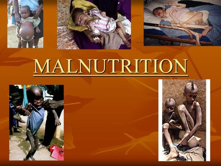 MALNUTRITION. WHAT IS MALNUTRITION? Malnutrition is: poor nutrition due to an insufficient, poorly balanced diet, faulty digestion or poor utilization.