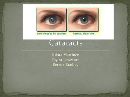 Krista Martinez Taylor Lawrence Serena Bradley.  A cataract is a clouding of your lens in your eye(s) that can cause impaired vision.  More than half.