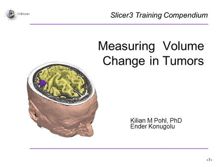 Pohl K, Konukoglu E -1- National Alliance for Medical Image Computing Measuring Volume Change in Tumors Kilian M Pohl, PhD Ender Konugolu Slicer3 Training.