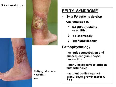 FELTY SYNDROME -2-4% RA patients develop Characterized by: 1.RA (RF+)(nodules, vasculitis) 2. splenomegaly 3. granulocytopenia Pathophysiology - splenic.