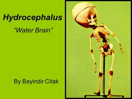 "Hydrocephalus By Bayindir Citak ""Water Brain"". Hydrocephalus Hydrocephalus is- The causes are- It affects someone by- The current treatment is- Works."