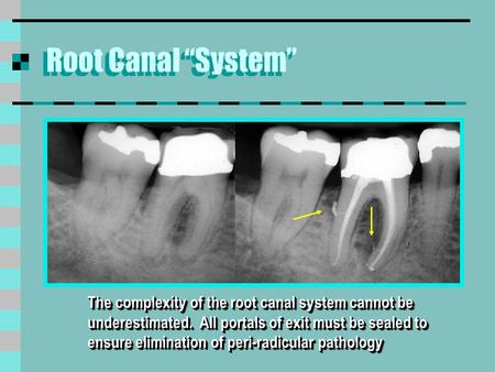 "Root Canal ""System"" The complexity of the root canal system cannot be underestimated. All portals of exit must be sealed to ensure elimination of peri-radicular."