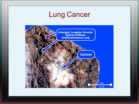 Lung Cancer. The most common cancer worldwide, and the deadliest 1.37 million deaths worldwide (WHO 2008) 203,000 people diagnosed in the US each year,
