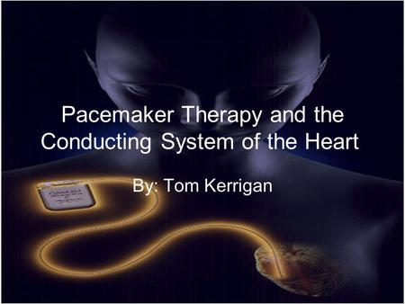Pacemaker Therapy and the Conducting System of the Heart By: Tom Kerrigan.