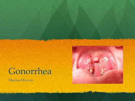 Gonorrhea Marissa Miuccio. What is it? Gonorrhea is a sexually transmitted disease (STD) that can infect both men and women. Gonorrhea is a sexually transmitted.