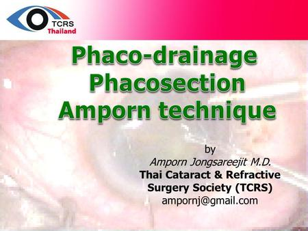 By Amporn Jongsareejit M.D. Thai Cataract & Refractive Surgery Society (TCRS)