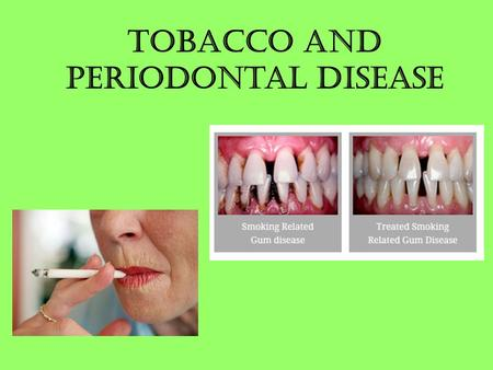 Tobacco and Periodontal Disease. What is Periodontal Disease? Periodontal Disease is also commonly known as Gum Disease This affects the gums and the.