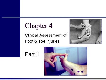 Chapter 4 Clinical Assessment of Foot & Toe Injuries Part II.