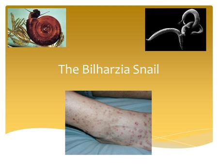 The Bilharzia Snail.