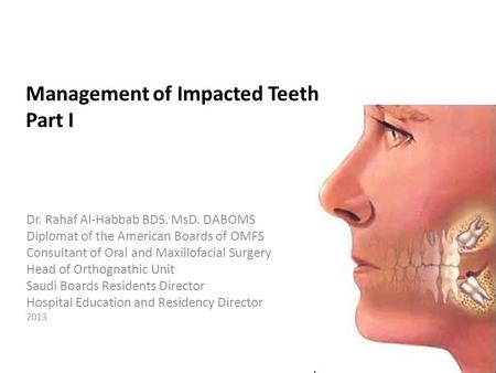 Management of Impacted Teeth Part I Dr. Rahaf Al-Habbab BDS. MsD. DABOMS Diplomat of the American Boards of OMFS Consultant of Oral and Maxillofacial Surgery.