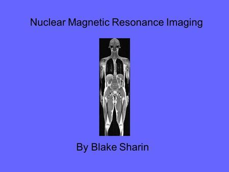 Nuclear Magnetic Resonance Imaging By Blake Sharin.