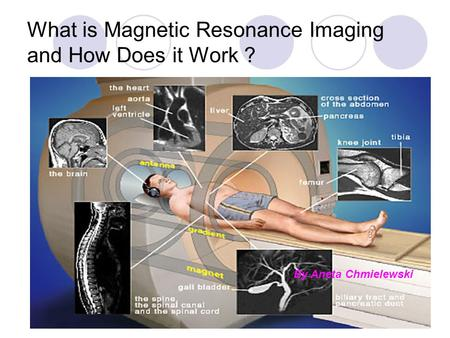 What is Magnetic Resonance Imaging and How Does it Work ?