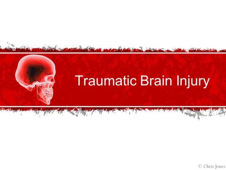 Traumatic Brain Injury. Traumatic Brain Injury Defined Traumatic Brain Injury (TBI): According to the Brain Injury Association, traumatic brain injury.
