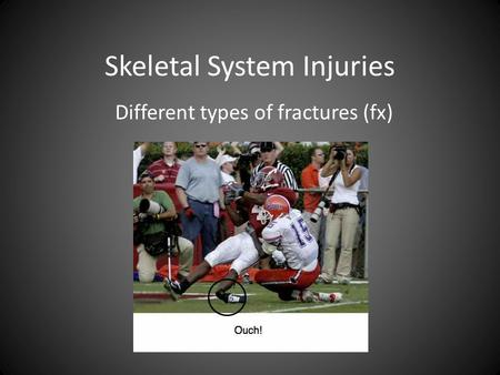 Skeletal System Injuries Different types of fractures (fx)