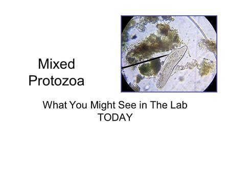 Mixed Protozoa What You Might See in The Lab TODAY.