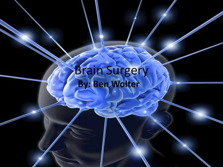 Brain Surgery By: Ben Wolter Why do some people need brain surgery? Some people need brain surgery because they have diseases that can't be cured by.