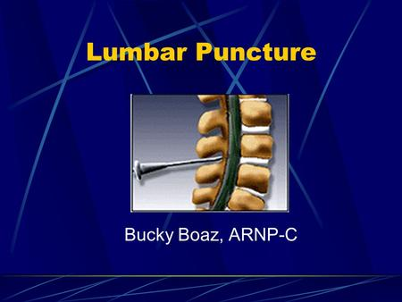 Lumbar Puncture Bucky Boaz, ARNP-C. CSF Formation 140 ml spinal and cranial CSF 30 ml in the spinal cord Production is approx. 0.35 ml/min Net flow out.