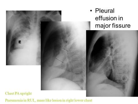 Pleural effusion in major fissure Chest PA upright Pneumonia in RUL, mass like lesion in right lower chest.