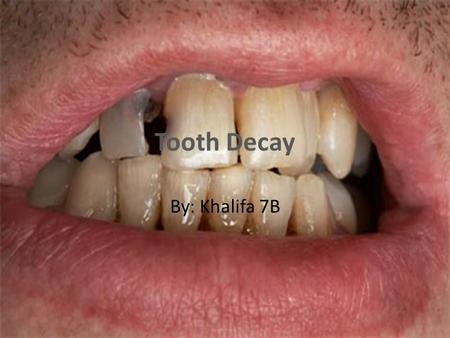 Tooth Decay By: Khalifa 7B.