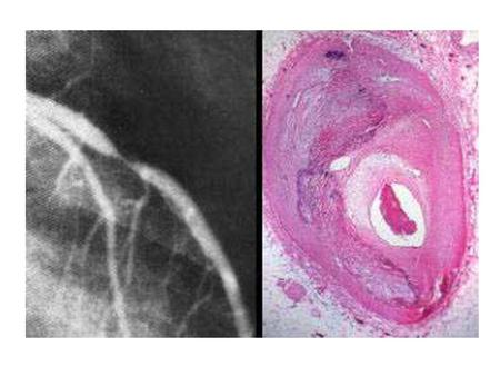 The left frame shows marked narrowing as seen by angiography. The right frame shows the histology of the narrowed area. There is marked thickening of.