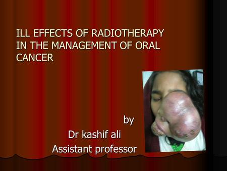 ILL EFFECTS OF RADIOTHERAPY IN THE MANAGEMENT OF ORAL CANCER by Dr kashif ali Assistant professor.