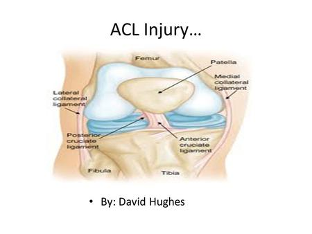 ACL Injury… By: David Hughes. Symptoms… There are only a few symptoms of an ACL injury, but they are very obvious symptoms. One symptom of an ACL injury.