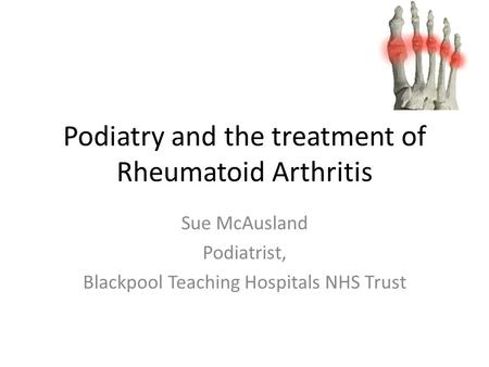 Podiatry and the treatment of Rheumatoid Arthritis Sue McAusland Podiatrist, Blackpool Teaching Hospitals NHS Trust.
