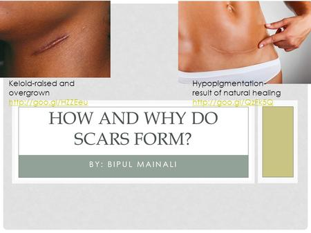 BY: BIPUL MAINALI HOW AND WHY DO SCARS FORM? Keloid-raised and overgrown  Hypopigmentation- result of natural healing