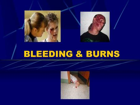 BLEEDING & BURNS. Types of external injuries Punctures.