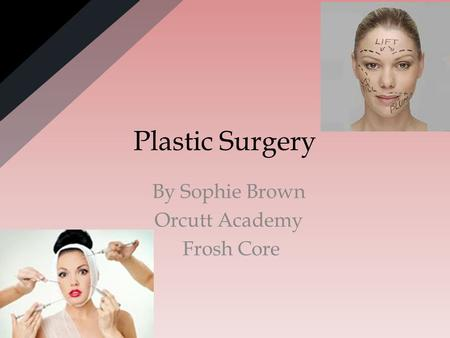 Plastic Surgery By Sophie Brown Orcutt Academy Frosh Core.