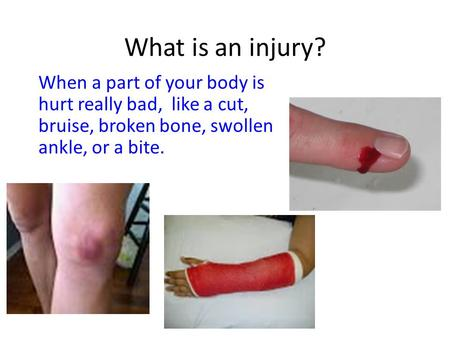 What is an injury? When a part of your body is hurt really bad, like a cut, bruise, broken bone, swollen ankle, or a bite.