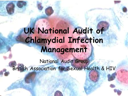 National Audit Group UK National Audit of Chlamydial Infection Management National Audit Group British Association for Sexual Health & HIV.
