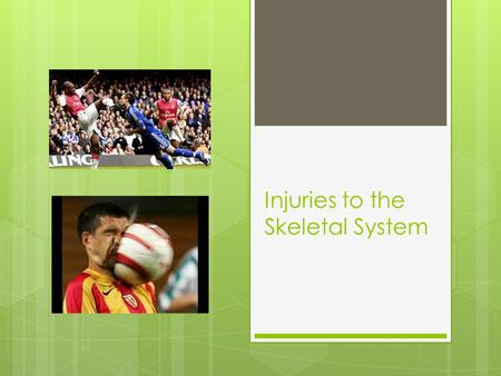 Injuries to the Skeletal System. Is this weight bearing or non weight bearing? What is a long term benefit that this type of activity provides to the.