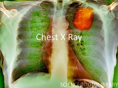 Chest X Ray. How Do They Work? They are a form of electromagnetic radiation. X-rays have high energy and short wavelength and are able to pass through.
