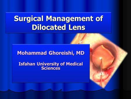 Mohammad Ghoreishi, MD Isfahan University of Medical Sciences Mohammad Ghoreishi, MD Isfahan University of Medical Sciences Surgical Management of Dilocated.
