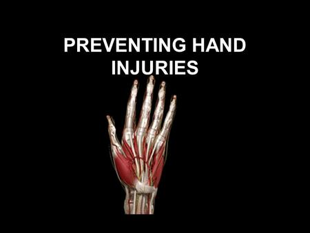 PREVENTING HAND INJURIES. How important are your hands? The hand is one of the most complex parts of your body - the movement of the tendons, bones, tissues.