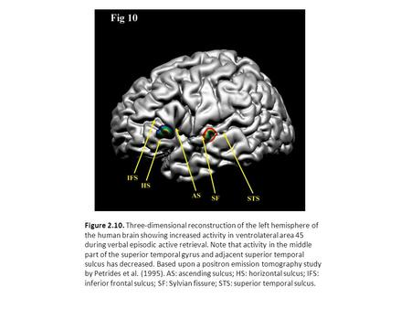 Figure 2.10. Three-dimensional reconstruction of the left hemisphere of the human brain showing increased activity in ventrolateral area 45 during verbal.