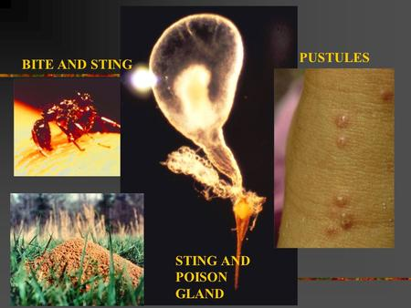 BITE AND STING STING AND POISON GLAND PUSTULES. Where are imported fire ants from and where are they found in the US?