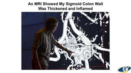 An MRI Showed My Sigmoid Colon Wall Was Thickened and Inflamed.