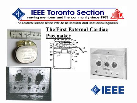 The First External Cardiac Pacemaker. 2 IEEE established the Milestones Program in 1983 in conjunction with the 1984 Centennial Celebration to recognize.