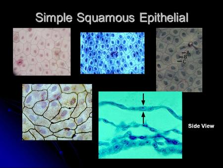 Simple Squamous Epithelial Side View. Simple Cuboidal Epithelial.